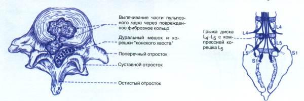 Компрессия корешков диска позвоночника