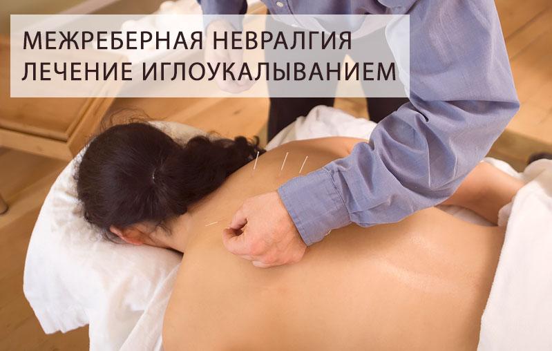Симптомы межреберную невралгию в домашних условиях 739