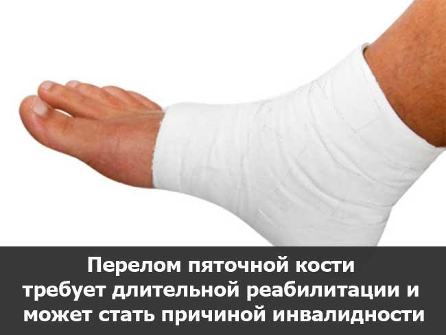 Меры по реабилитации после перелома пятки