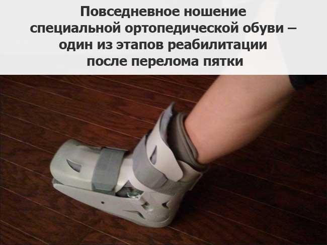 Ношение специальной обуви после перелома