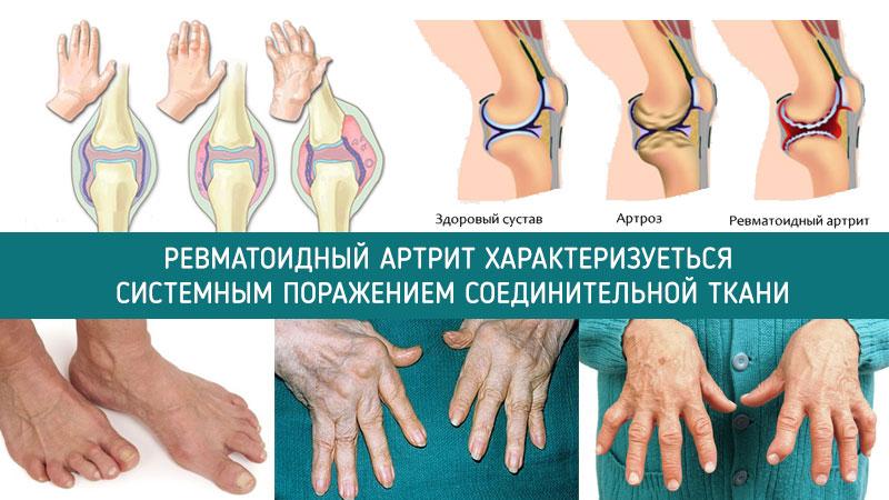 нкжно ревматоидный артрит беларусь вариант Вторая часть